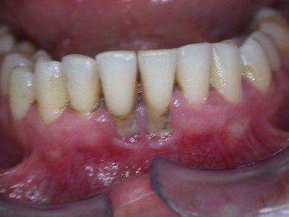 ön 2 dişde dişeti çekilmesi