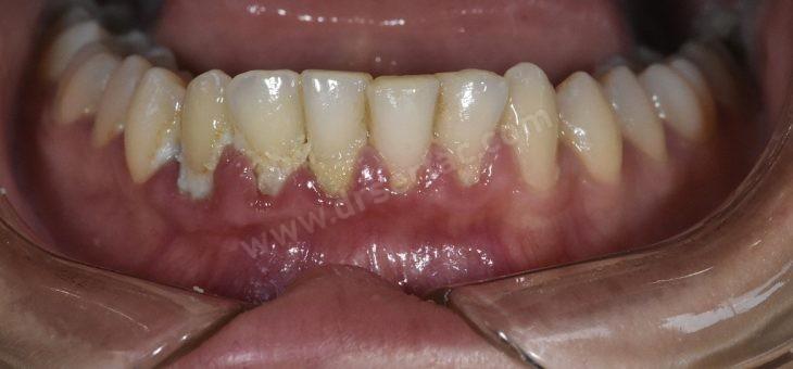 Dişeti Çekilmesinin Sınıflandırılması