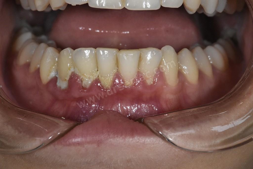 Alt çene diş eti hastalığı