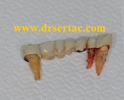 Sallanarak diş kaplamaları ile birlikte çıkan dişler.