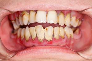 Diş Taşı Tedavisi
