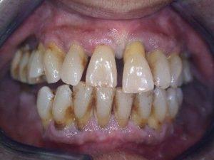 Dişeti Çekilmesiolan bir ağız
