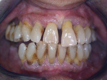 Diş Eti Hastalıkları Hangileridir?