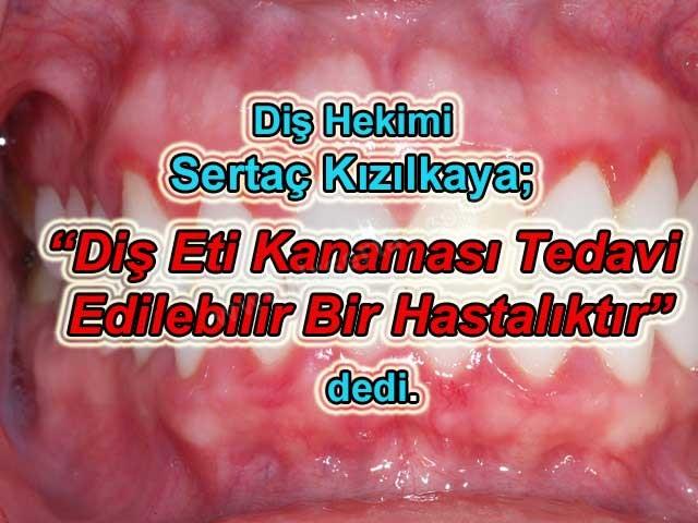 Diş eti kanaması ağız kokusuna da neden olur ve tedavi edilebilir bir hastalıktır İstanbul Küçükçekmece Diş Hekimi Sertaç Kızılkaya açıkladı