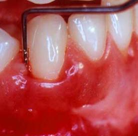 Diş eti hastalığı tedavisi