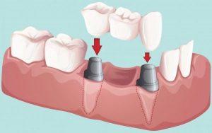 implant üzeri köprü