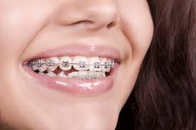 ortodonti uzmanı